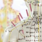 Akupunktur bei chronischen Schmerzen